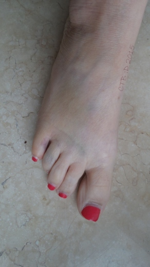 After I accidently kicked the coffee table I broke my toe. My toes were swollen and purple. A few days later the brusing has spread into my foot.